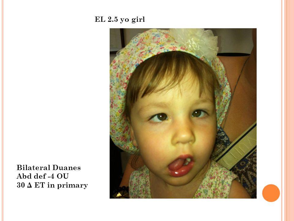EL 2.5 yo girl Bilateral Duanes Abd def -4 OU 30 Δ ET in primary