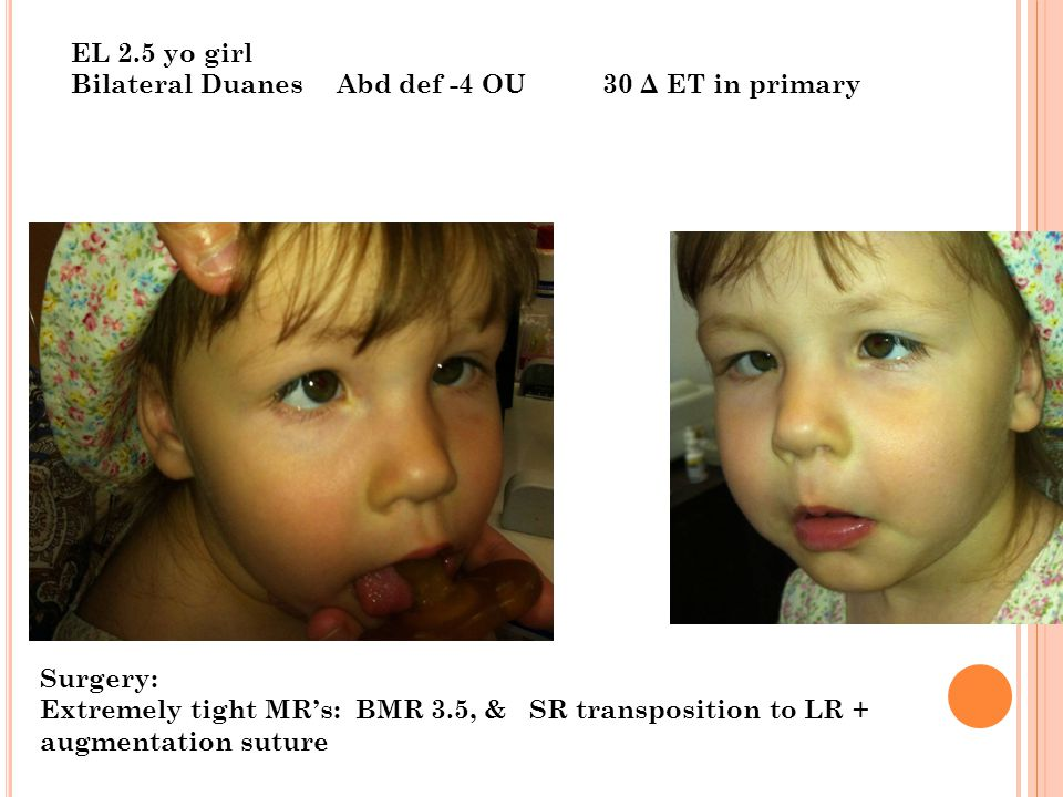 EL 2.5 yo girl Bilateral DuanesAbd def -4 OU30 Δ ET in primary Surgery: Extremely tight MR's: BMR 3.5, & SR transposition to LR + augmentation suture