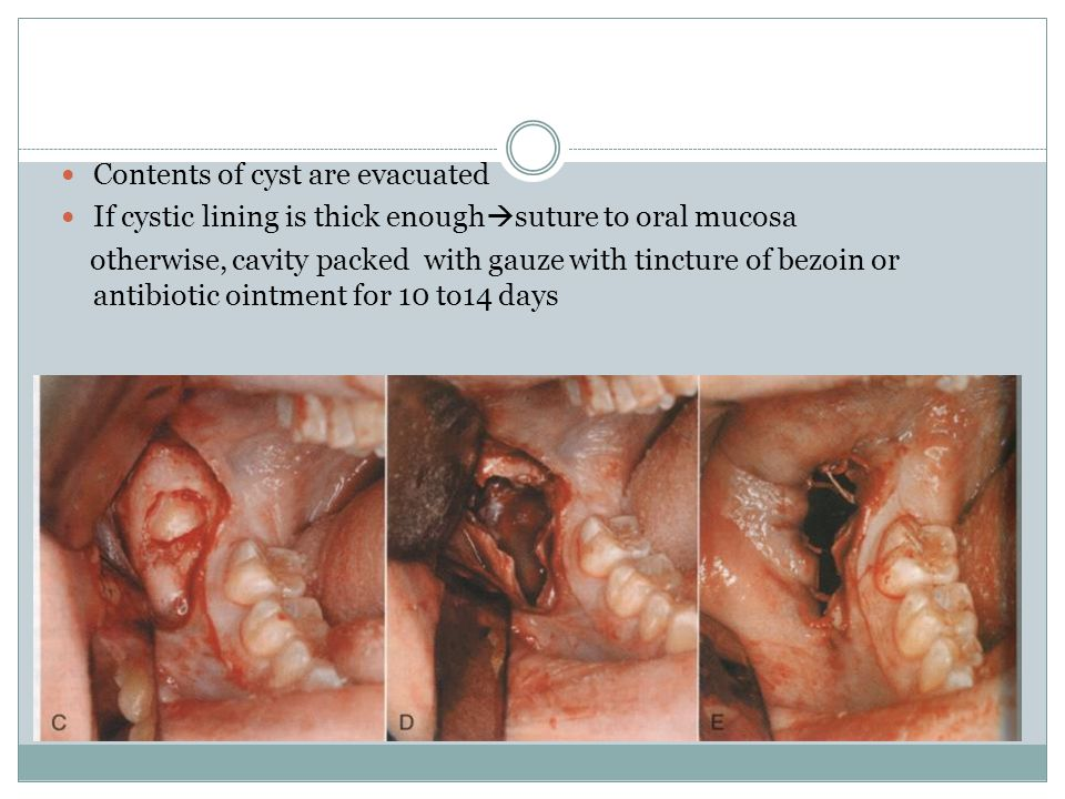 Contents of cyst are evacuated If cystic lining is thick enough  suture to oral mucosa otherwise, cavity packed with gauze with tincture of bezoin or