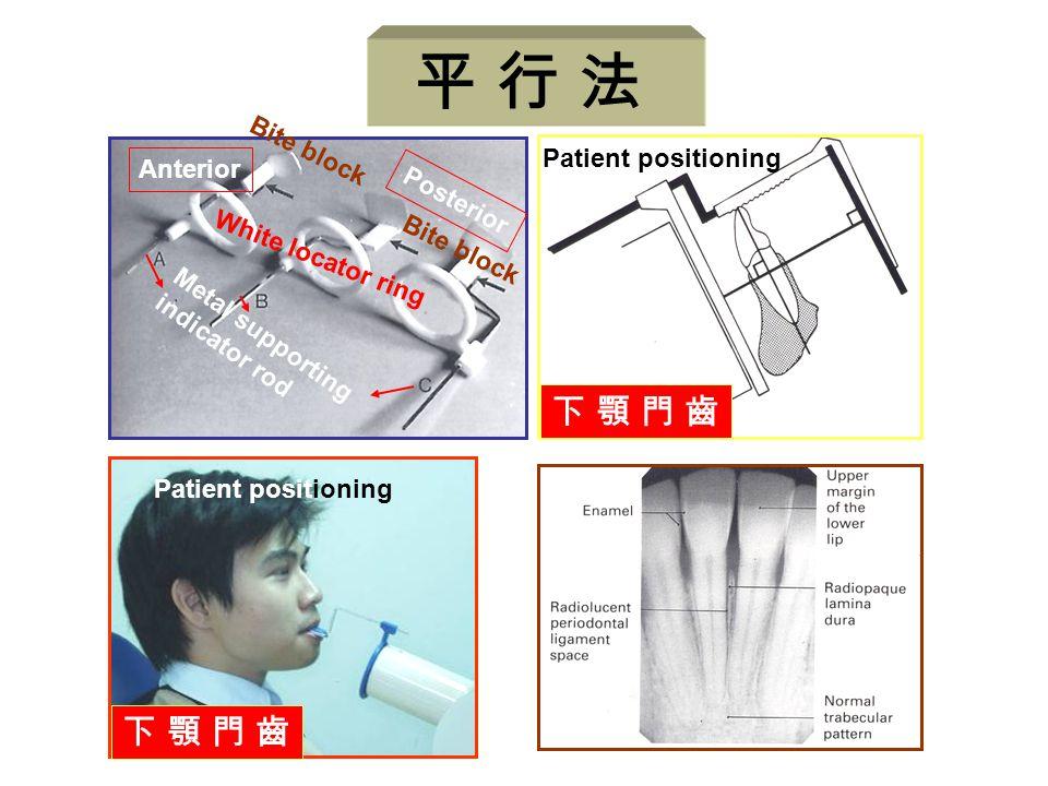 Anterior Posterior Metal supporting indicator rod White locator ring Bite block 下 顎 門 齒下 顎 門 齒 Patient positioning 下 顎 門 齒下 顎 門 齒 平 行 法
