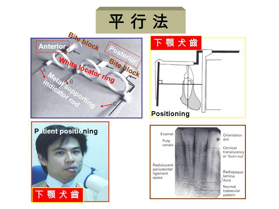 下 顎 犬 齒下 顎 犬 齒 Positioning Anterior Posterior Metal supporting indicator rod White locator ring Bite block Patient positioning 下 顎 犬 齒下 顎 犬 齒 平 行 法