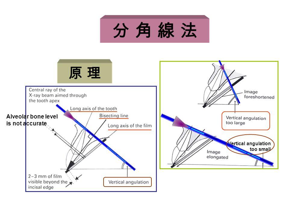 分 角 線 法 Alveolar bone level is not accurate Vertical angulation too small 原 理