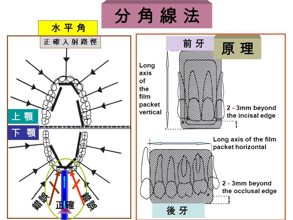 前 牙 2 - 3mm beyond the incisal edge Long axis of the film packet vertical Long axis of the film packet horizontal 後 牙 2 - 3mm beyond the occlusal edge