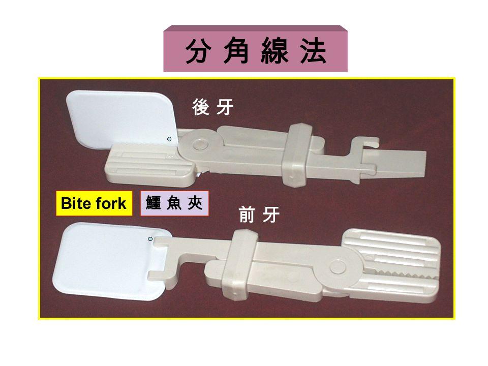 後 牙後 牙 前 牙前 牙 Bite fork 鱷 魚 夾鱷 魚 夾 分 角 線 法