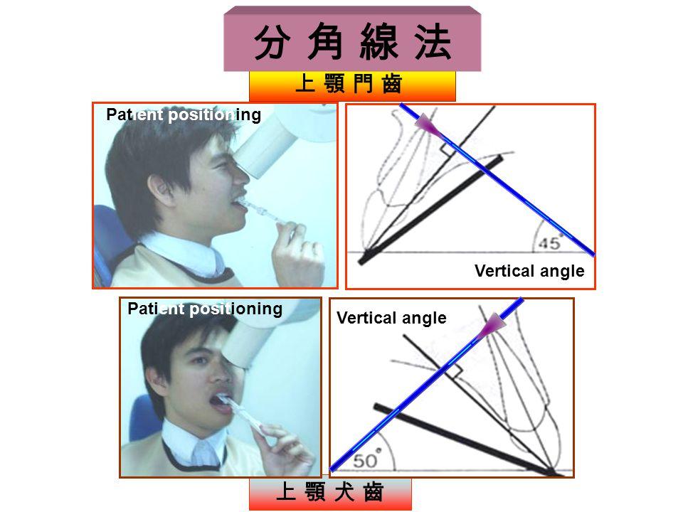 上 顎 犬 齒 Vertical angle 上 顎 門 齒 Vertical angle Patient positioning 分 角 線 法