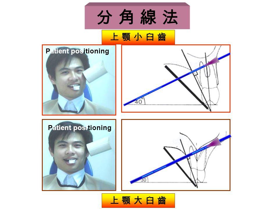 Patient positioning 上 顎 小 臼 齒 上 顎 大 臼 齒 分 角 線 法