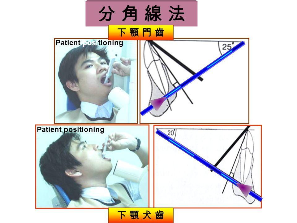 Patient positioning 下 顎 犬 齒 下 顎 門 齒