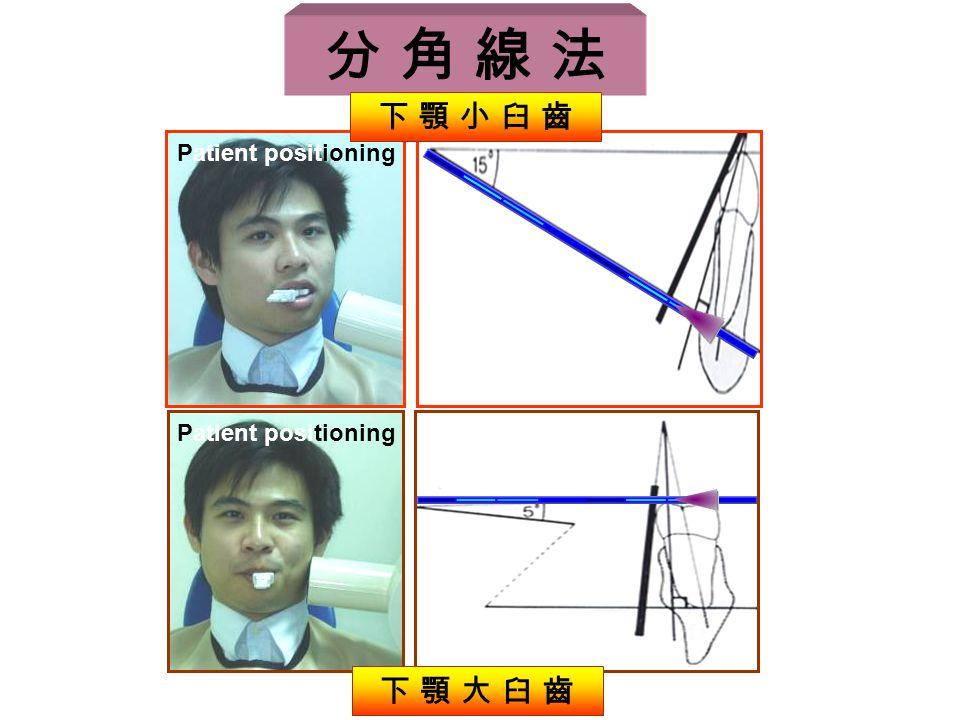 Patient positioning 分 角 線 法 下 顎 小 臼 齒 下 顎 大 臼 齒