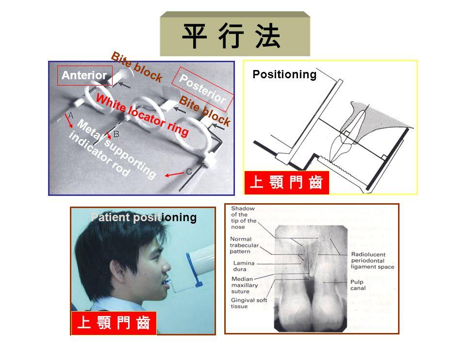 Positioning 上 顎 門 齒上 顎 門 齒 Anterior Posterior Metal supporting indicator rod White locator ring Bite block Patient positioning 上 顎 門 齒上 顎 門 齒 平 行 法