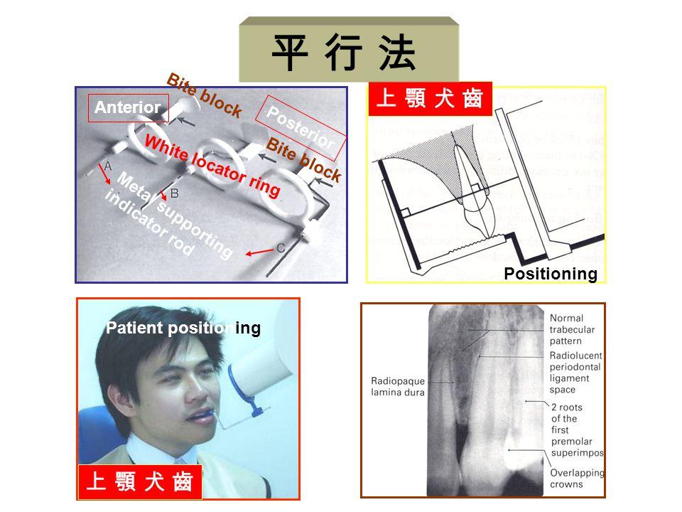 上 顎 犬 齒上 顎 犬 齒 Positioning Anterior Posterior Metal supporting indicator rod White locator ring Bite block Patient positioning 上 顎 犬 齒上 顎 犬 齒 平 行 法