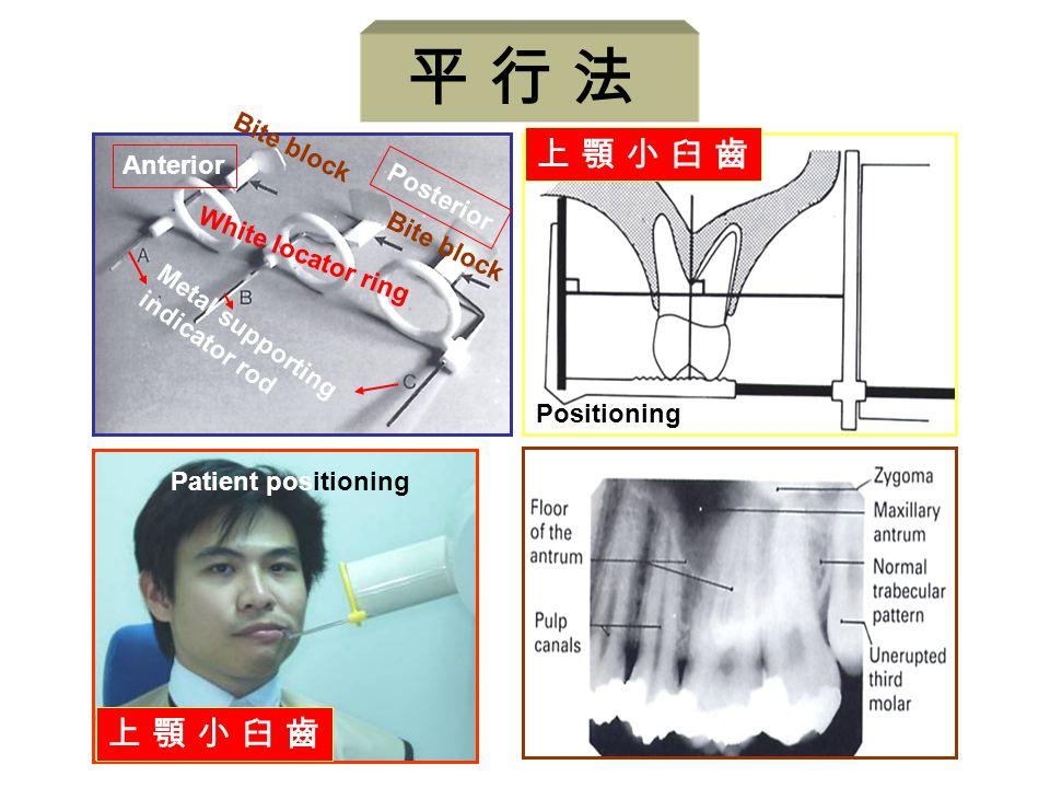 Positioning 上 顎 小 臼 齒上 顎 小 臼 齒 Anterior Posterior Metal supporting indicator rod White locator ring Bite block Patient positioning 上 顎 小 臼 齒上 顎 小 臼 齒
