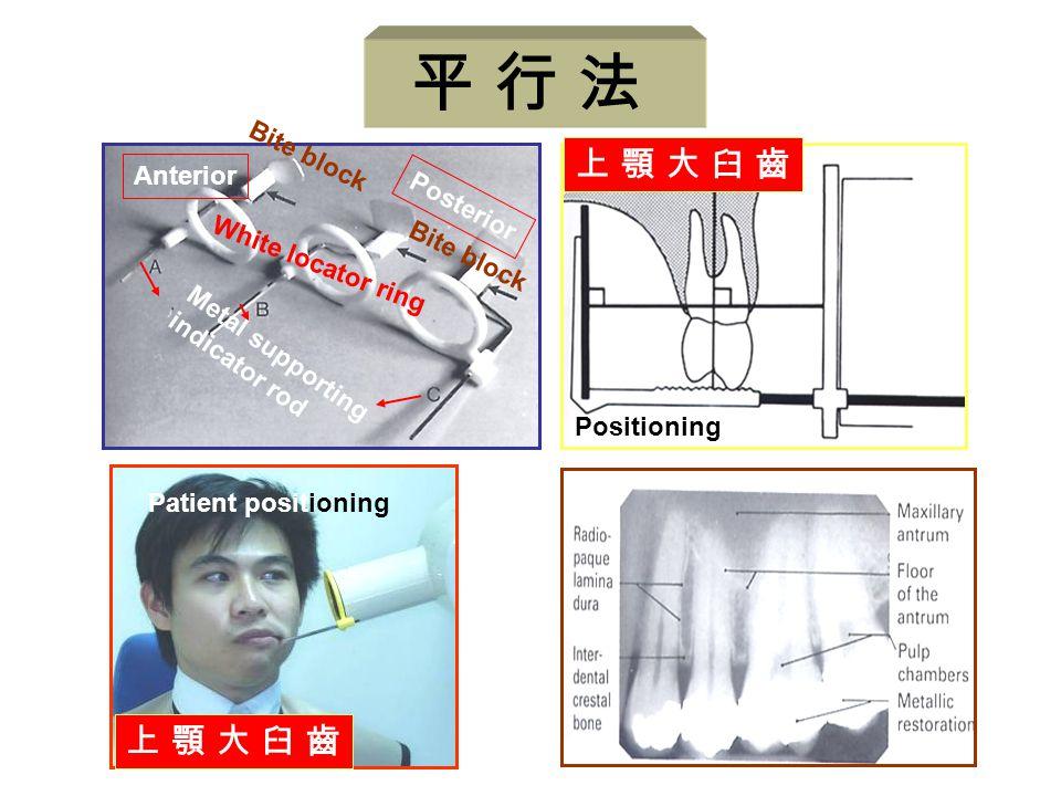 上 顎 大 臼 齒上 顎 大 臼 齒 Positioning Anterior Posterior Metal supporting indicator rod White locator ring Bite block Patient positioning 上 顎 大 臼 齒上 顎 大 臼 齒