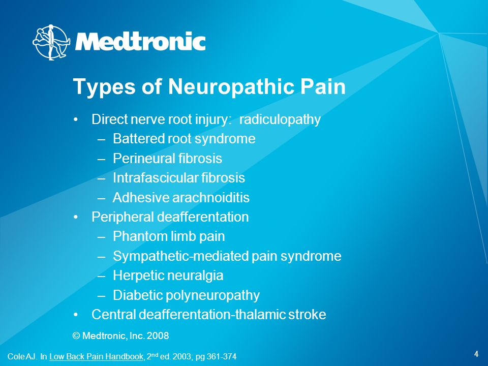 4 © Medtronic, Inc. 2008 Types of Neuropathic Pain Direct nerve root injury: radiculopathy –Battered root syndrome –Perineural fibrosis –Intrafascicul