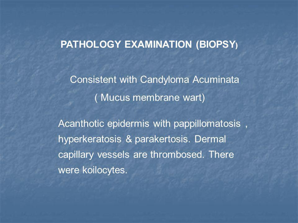 PATHOLOGY EXAMINATION (BIOPSY ) Consistent with Candyloma Acuminata ( Mucus membrane wart) Acanthotic epidermis with pappillomatosis, hyperkeratosis &