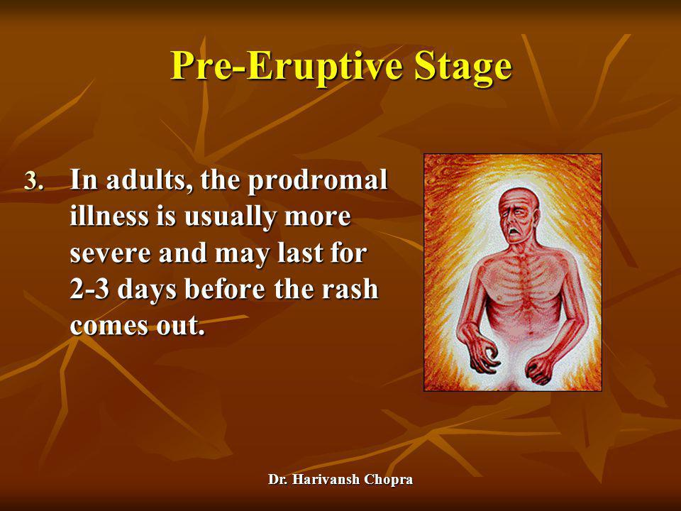 Dr. Harivansh Chopra Pre-Eruptive Stage 3. In adults, the prodromal illness is usually more severe and may last for 2-3 days before the rash comes out