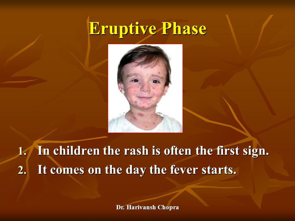 Dr. Harivansh Chopra Eruptive Phase 1. In children the rash is often the first sign. 2. It comes on the day the fever starts.