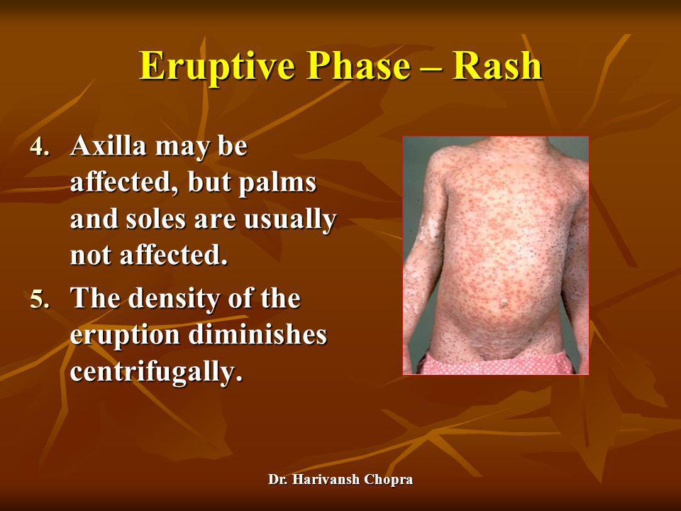 Dr. Harivansh Chopra Eruptive Phase – Rash 4. Axilla may be affected, but palms and soles are usually not affected. 5. The density of the eruption dim
