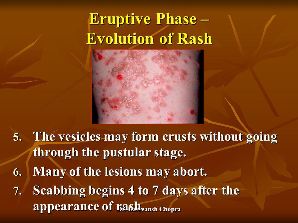 Dr. Harivansh Chopra Eruptive Phase – Evolution of Rash 5. The vesicles may form crusts without going through the pustular stage. 6. Many of the lesio