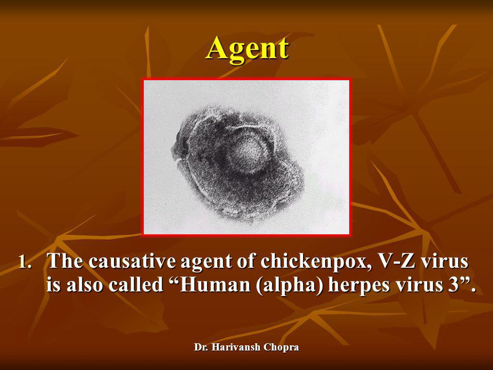 "Dr. Harivansh Chopra Agent 1. The causative agent of chickenpox, V-Z virus is also called ""Human (alpha) herpes virus 3""."