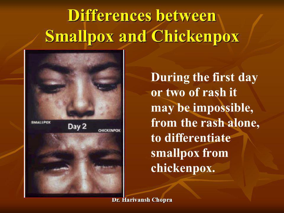 Dr. Harivansh Chopra Differences between Smallpox and Chickenpox During the first day or two of rash it may be impossible, from the rash alone, to dif