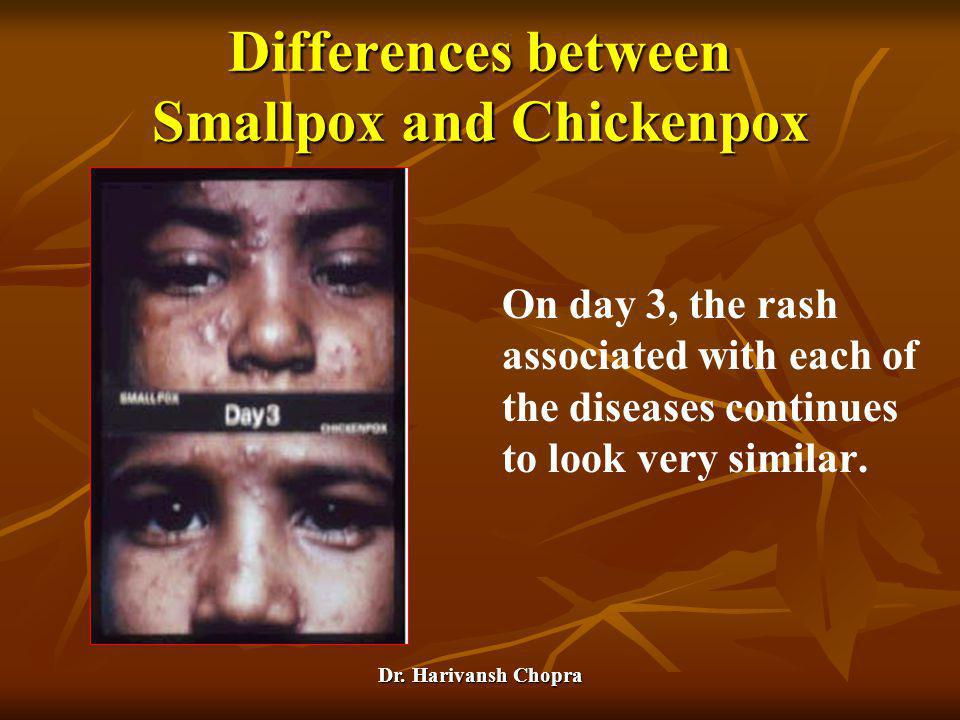 Dr. Harivansh Chopra On day 3, the rash associated with each of the diseases continues to look very similar. Differences between Smallpox and Chickenp