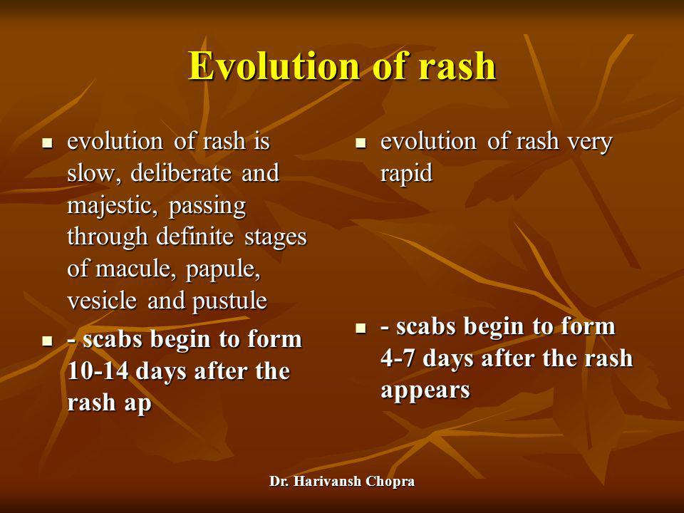 Dr. Harivansh Chopra Evolution of rash evolution of rash is slow, deliberate and majestic, passing through definite stages of macule, papule, vesicle