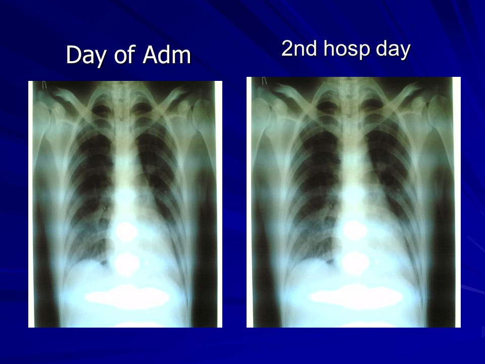 2nd hosp day 2nd hosp day Day of Adm