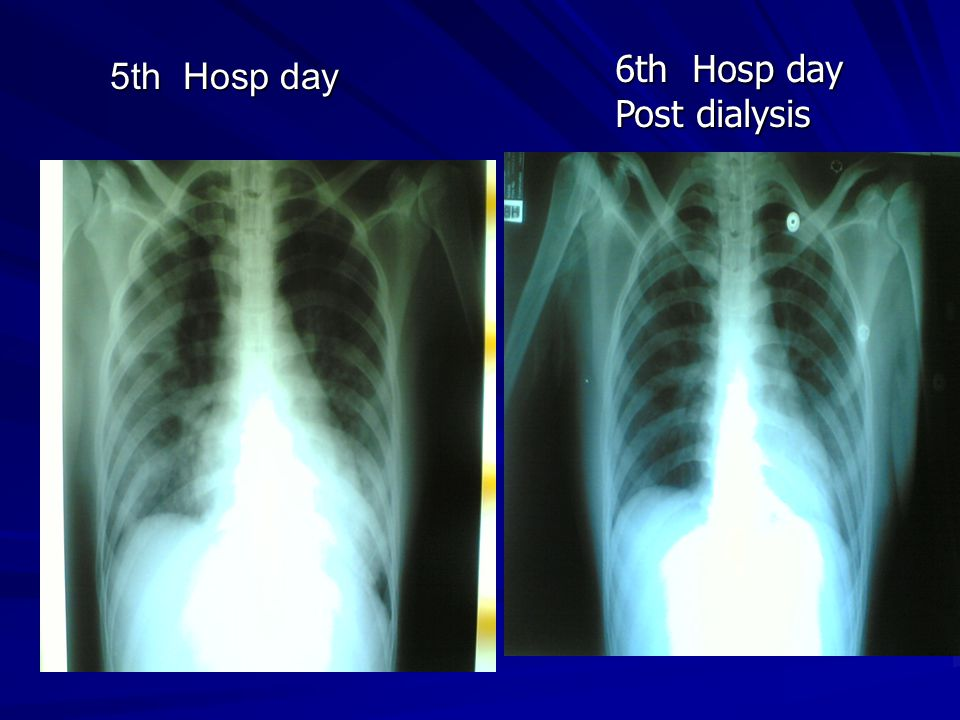 6th Hosp day Post dialysis