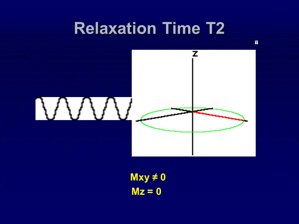 Relaxation Time T2 Mxy ≠ 0 Mz = 0