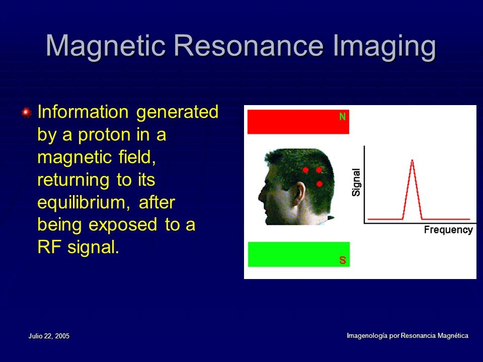 Julio 22, 2005 Imagenología por Resonancia Magnética Magnetic Resonance Imaging Information generated by a proton in a magnetic field, returning to it