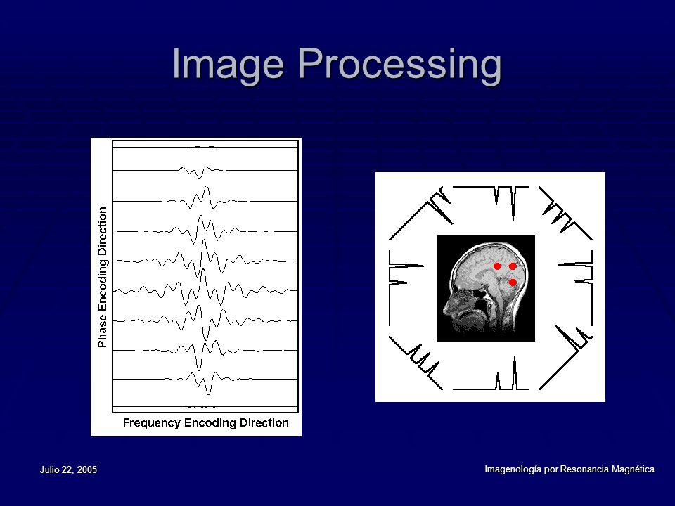 Julio 22, 2005 Imagenología por Resonancia Magnética Image Processing