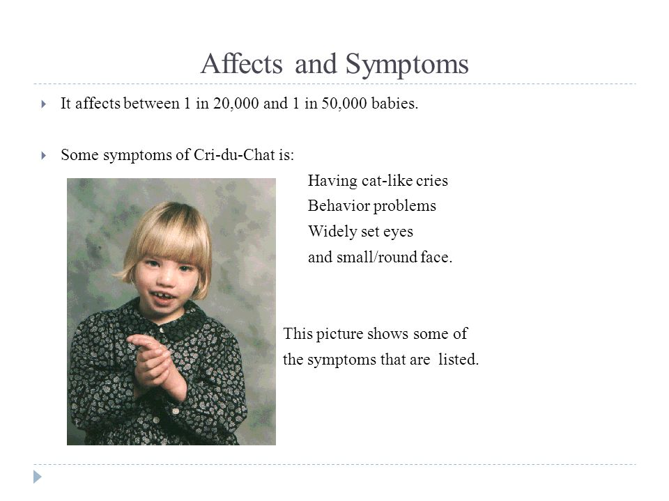 Affects and Symptoms  It affects between 1 in 20,000 and 1 in 50,000 babies.