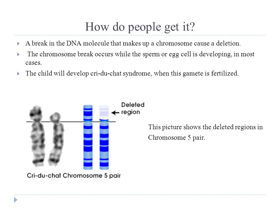 How do people get it. A break in the DNA molecule that makes up a chromosome cause a deletion.