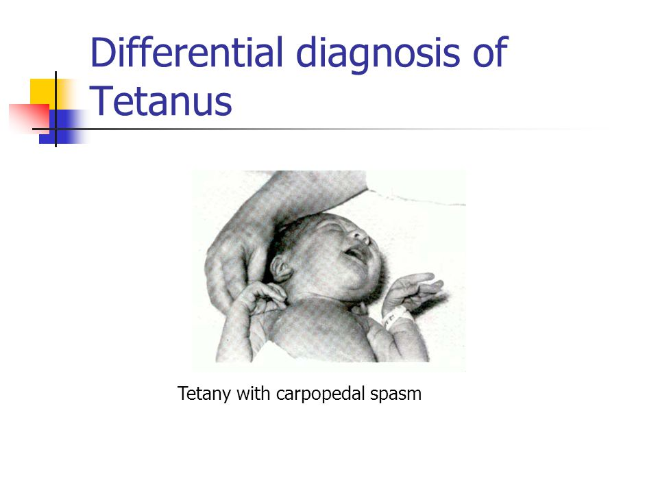 Differential diagnosis of Tetanus Tetany with carpopedal spasm