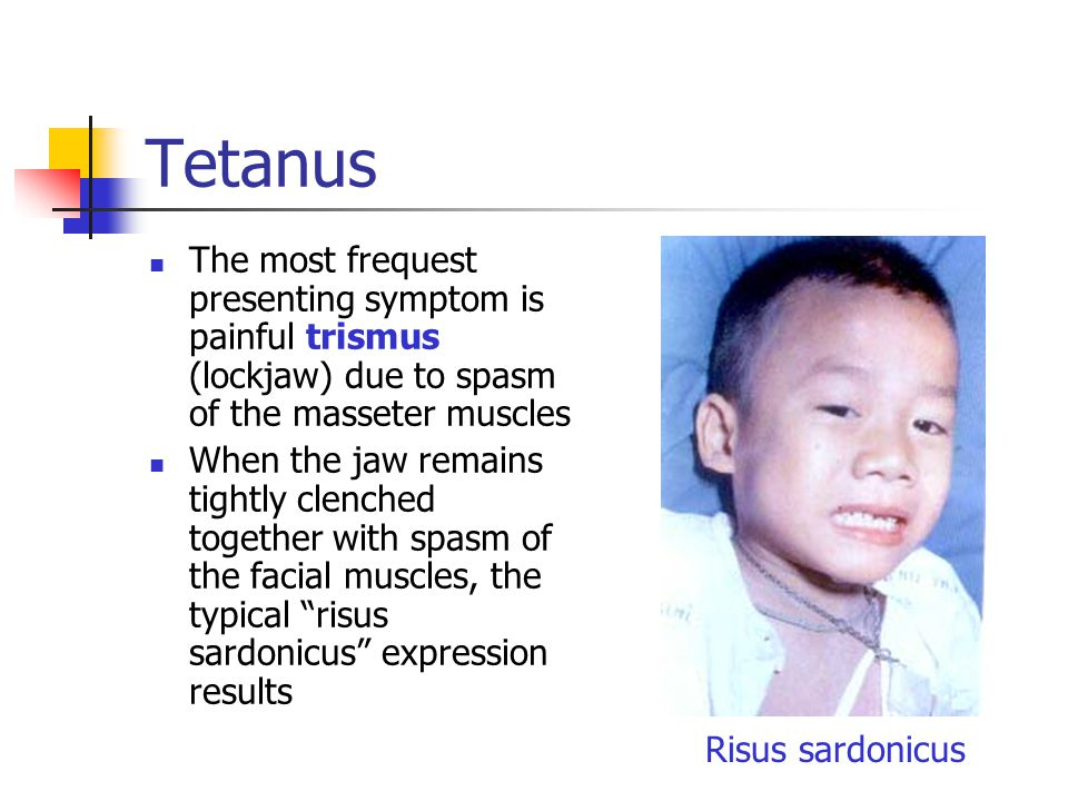 Tetanus The most frequest presenting symptom is painful trismus (lockjaw) due to spasm of the masseter muscles When the jaw remains tightly clenched together with spasm of the facial muscles, the typical risus sardonicus expression results Risus sardonicus