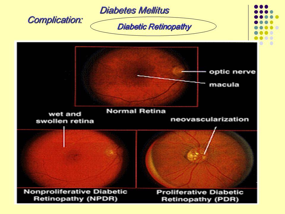 Diabetes Mellitus Complication: Diabetic Retinopathy