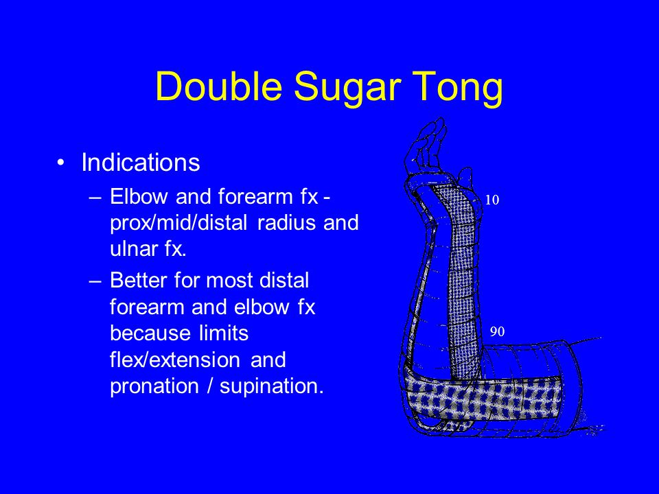 Double Sugar Tong Indications –Elbow and forearm fx - prox/mid/distal radius and ulnar fx.