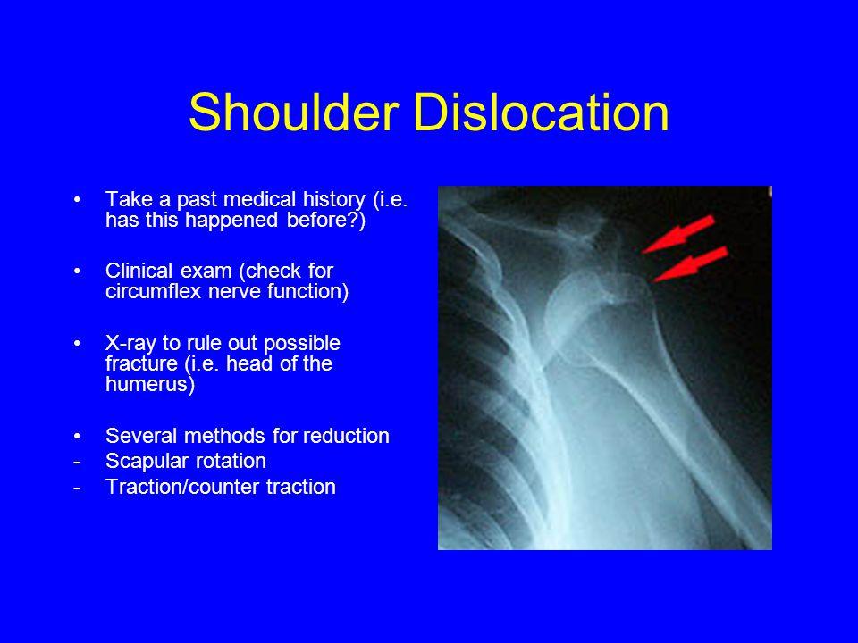 Shoulder Dislocation Take a past medical history (i.e.