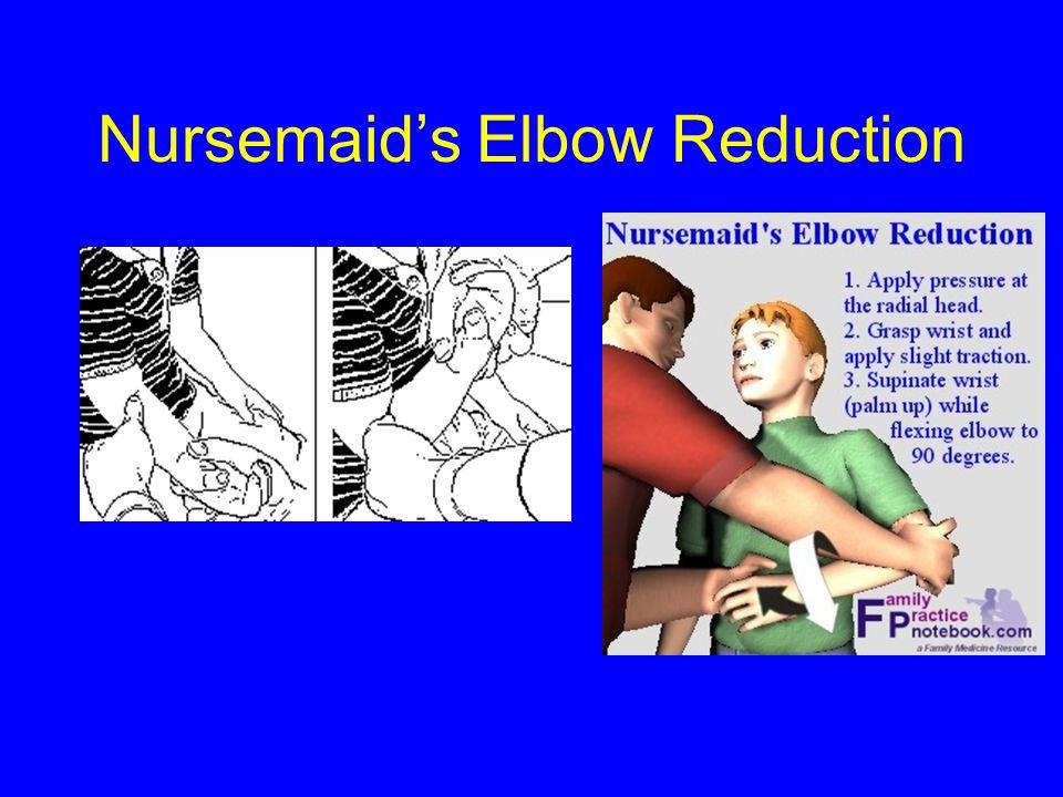 Nursemaid's Elbow Reduction