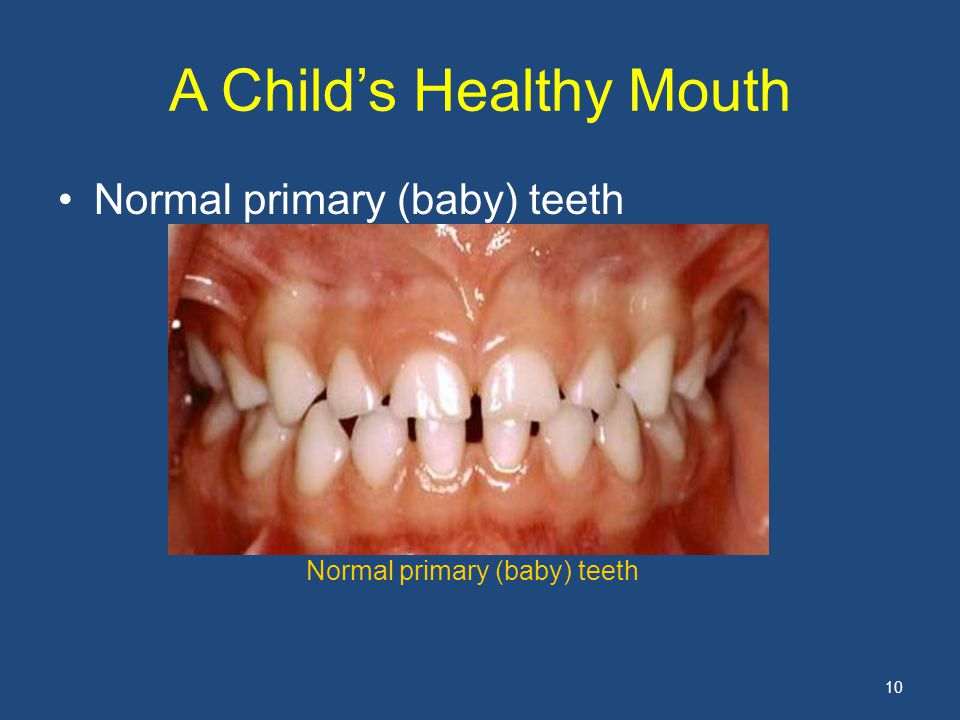 A Child's Healthy Mouth Normal primary (baby) teeth 10 Normal primary (baby) teeth