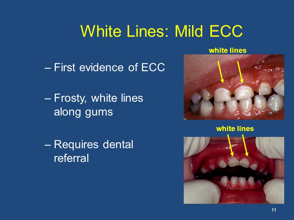 White Lines: Mild ECC –First evidence of ECC –Frosty, white lines along gums –Requires dental referral 11 white lines