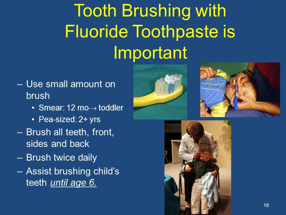 16 Tooth Brushing with Fluoride Toothpaste is Important –Use small amount on brush Smear: 12 mo→ toddler Pea-sized: 2+ yrs –Brush all teeth, front, sides and back –Brush twice daily –Assist brushing child's teeth until age 6.