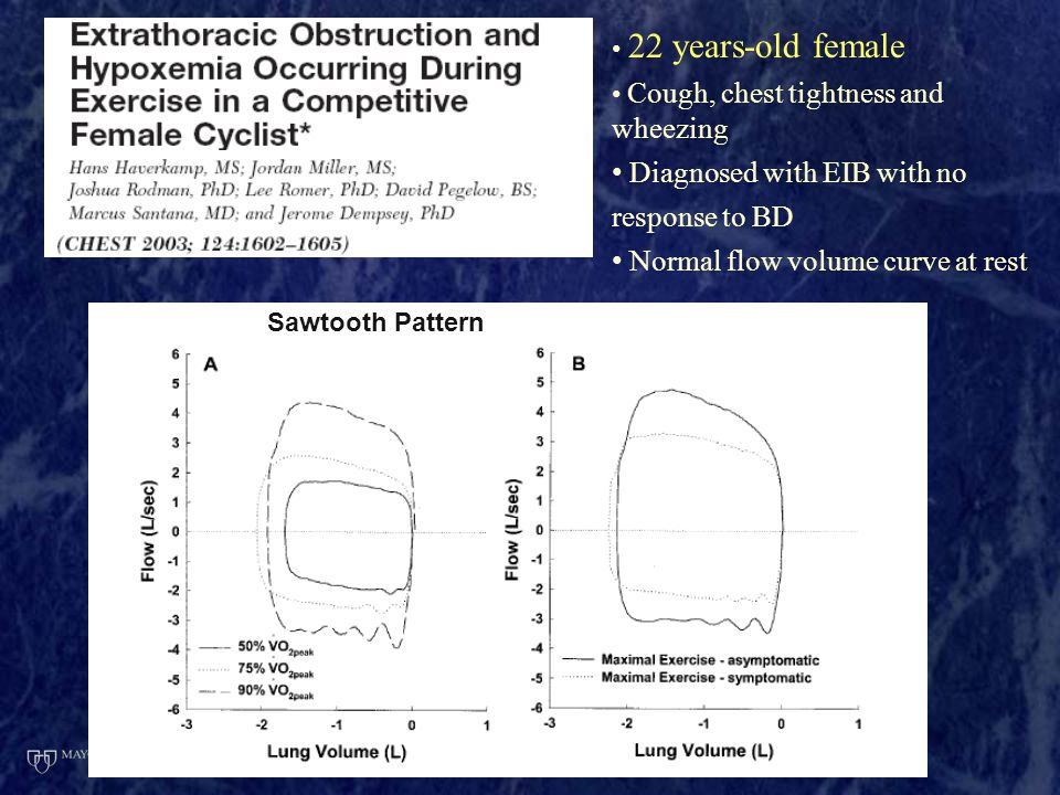 22 years-old female Cough, chest tightness and wheezing Diagnosed with EIB with no response to BD Normal flow volume curve at rest Sawtooth Pattern