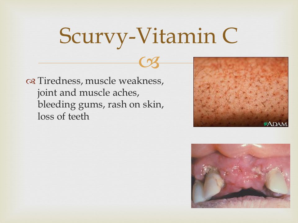   Tiredness, muscle weakness, joint and muscle aches, bleeding gums, rash on skin, loss of teeth Scurvy-Vitamin C