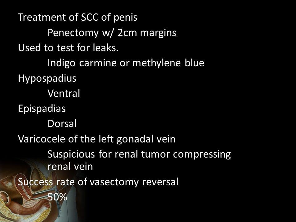 Treatment of SCC of penis Penectomy w/ 2cm margins Used to test for leaks. Indigo carmine or methylene blue Hypospadius Ventral Epispadias Dorsal Vari