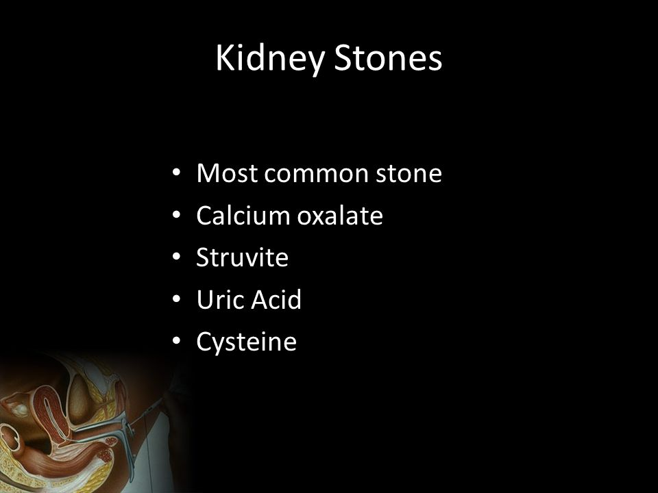 Kidney Stones Most common stone Calcium oxalate Struvite Uric Acid Cysteine