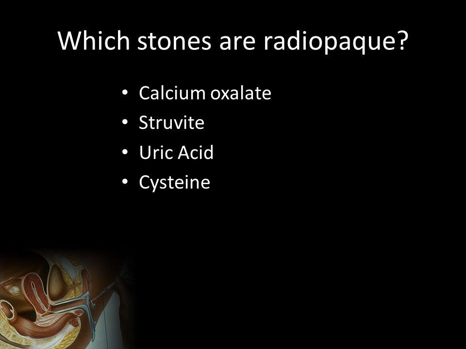 Which stones are radiopaque? Calcium oxalate Struvite Uric Acid Cysteine