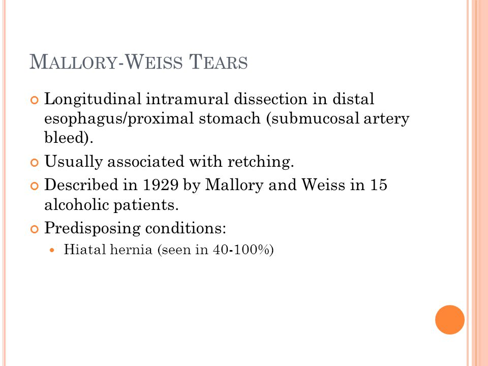 M ALLORY -W EISS T EARS Longitudinal intramural dissection in distal esophagus/proximal stomach (submucosal artery bleed). Usually associated with ret