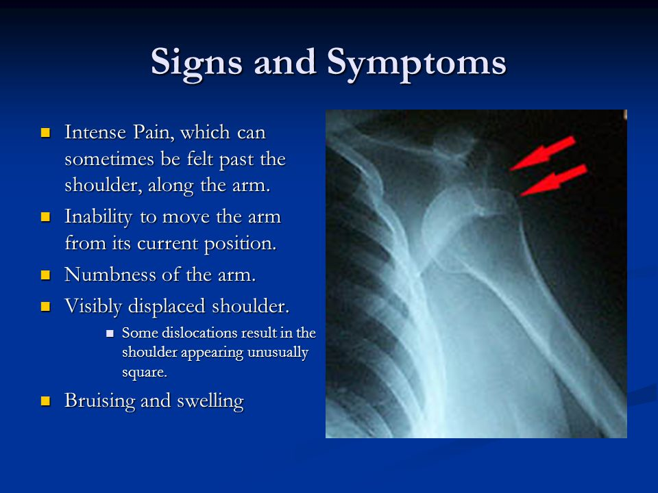Signs and Symptoms Intense Pain, which can sometimes be felt past the shoulder, along the arm.