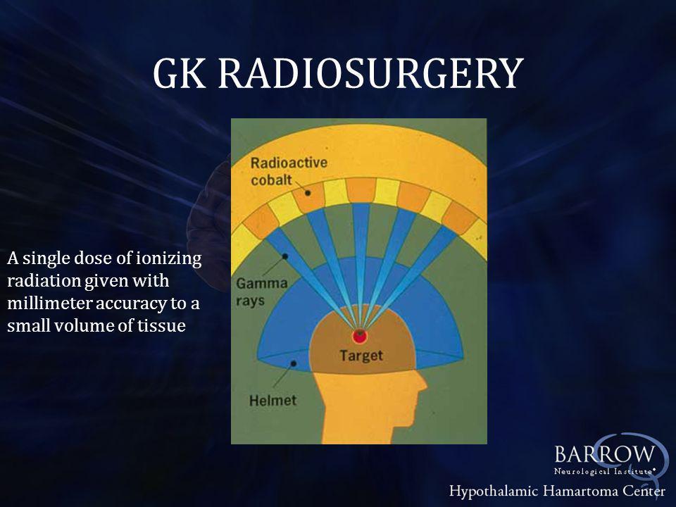 Devices for Radiosurgery - Gamma Knife - CyberKnife - Infini - Varian Trilogy system - X Knife - Novalis Brain Lab system
